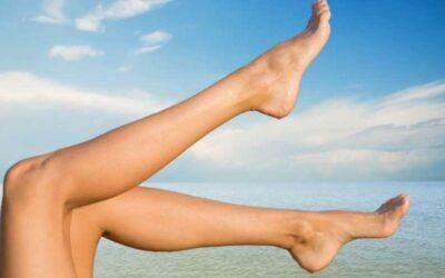 Consejos para tener unas piernas sin varices