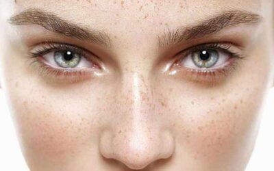 5 Consejos para prevenir las manchas de la cara en verano