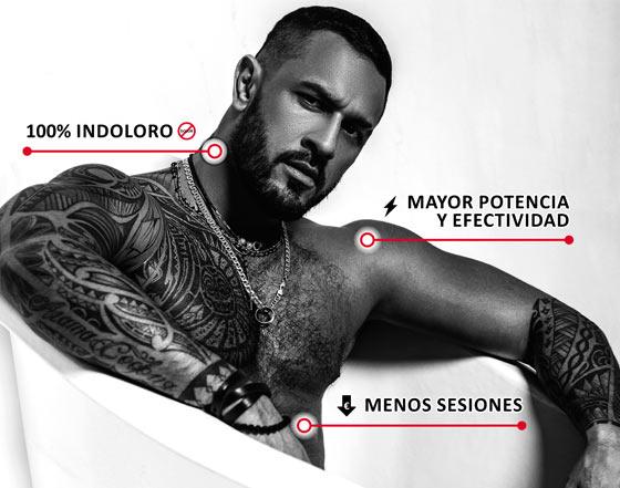 Láser eliminar tatuaje